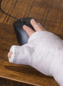 Hand with huge cast trying to use a mouse