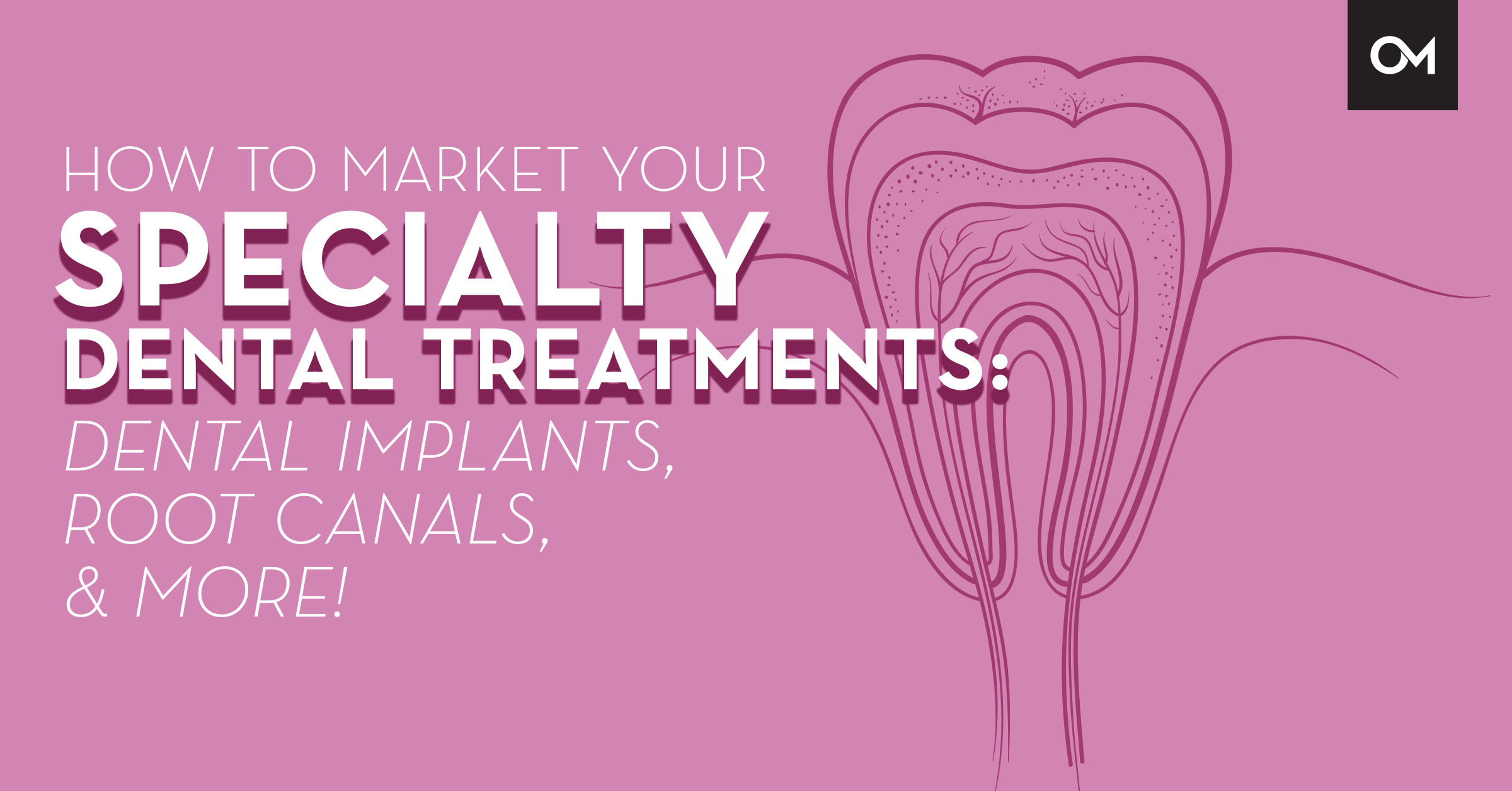 How to market your specialty dental treatments